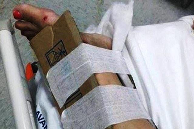 Ospedale Reggio Calabria Fratture medicate col cartone-min